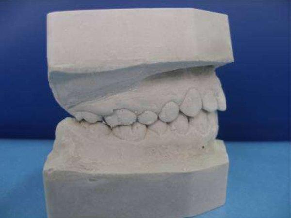 Классификация гипса и его применение в ортопедической стоматологии