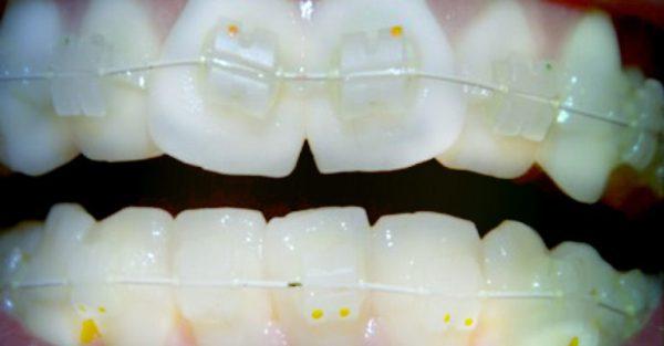 Керамическая брекет система на зубах фото