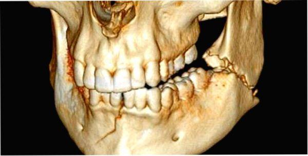 Остеосинтез перелома нижней челюсти операция