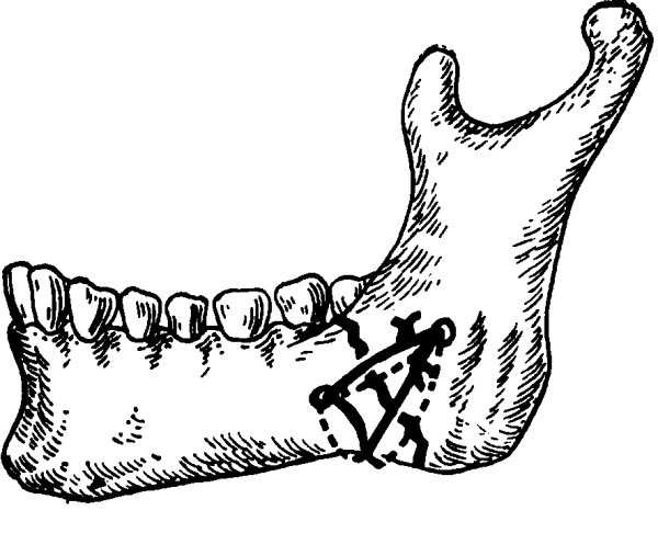 Остеосинтез челюсти цена