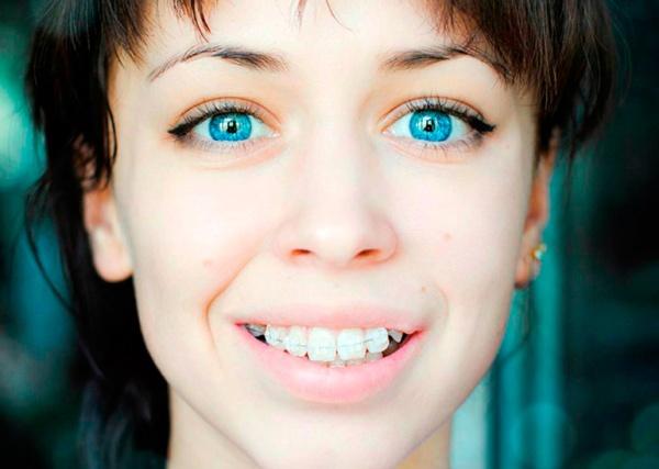 Фото изделий на зубах пациента