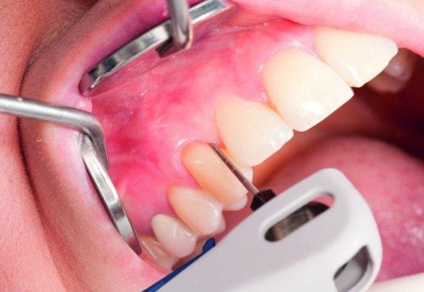 После снятия коронок болят зубы