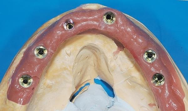 Трансфер чек в стоматологии