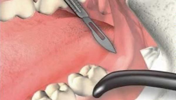 Когда неизбежна операция по удалению капюшона зуба мудрости