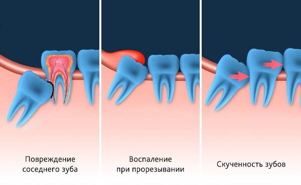 Удаление зуба мудрости под капюшоном отзывы