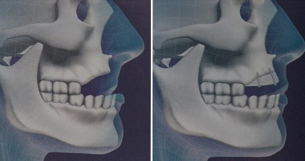 Вертикальная и горизонтальная аугментация альвеолярного гребня