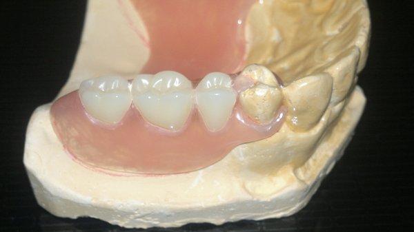 Плюсы и минусы зубных протезов Flexite