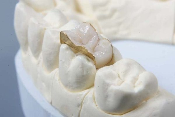 Восстановление зуба керамической вкладкой отзывы