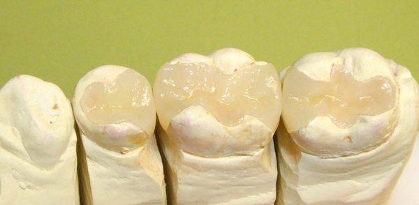 Восстановление жевательного зуба керамической вкладкой