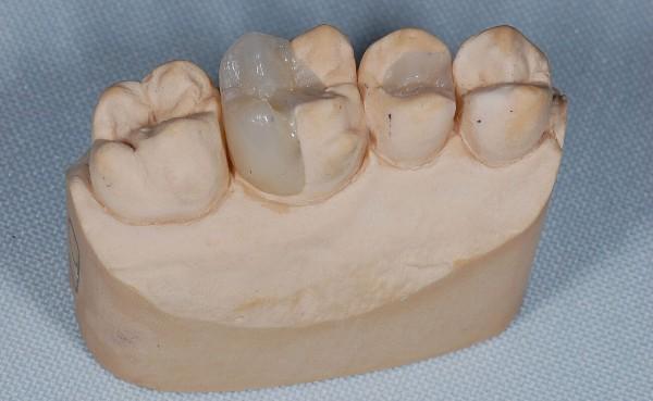 Керамические вкладки на зубы фото