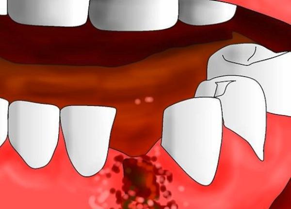 Лазерное удаление зубов мудрости отзывы
