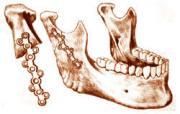 Остеоснтез верхней челюсти