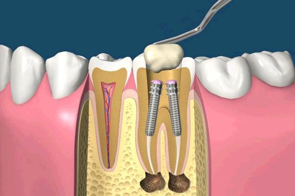 Анкерный штифт в стоматологии цена