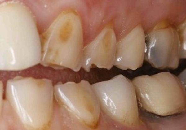 Тактика лечения эрозии эмали зубов