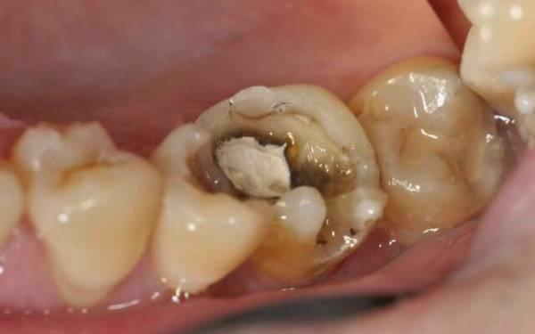 Классификация гнойного пульпита зуба