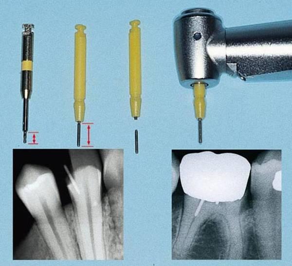 Установка парапульпарных штифтов зубов
