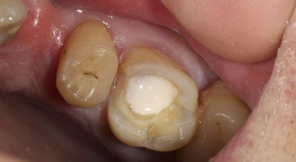 Цементная пломба на зуб