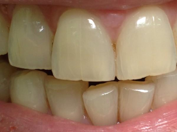 Разновидности трещин на эмали зубов