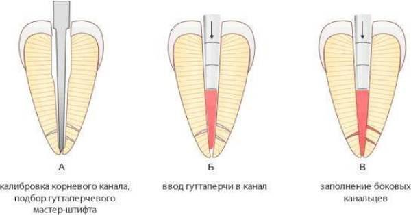 Состав гуттаперчевых штифтов в стоматологии фото