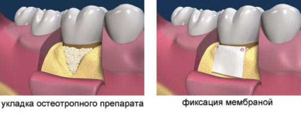 Коллагеновая мембрана в стоматологии цена