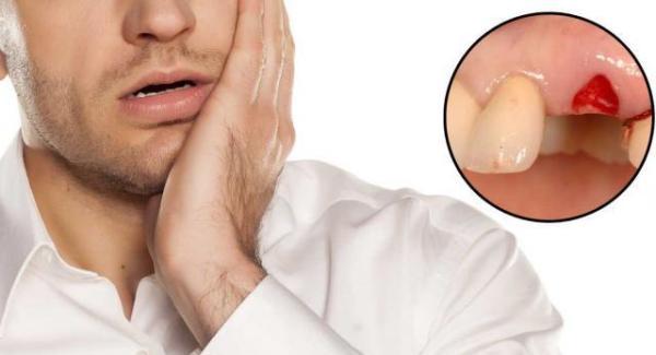 Первичное и вторичное луночковое кровотечение
