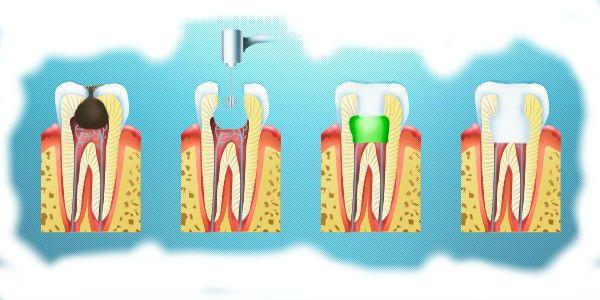 Эндодонтическое лечение обратимого начального пульпита
