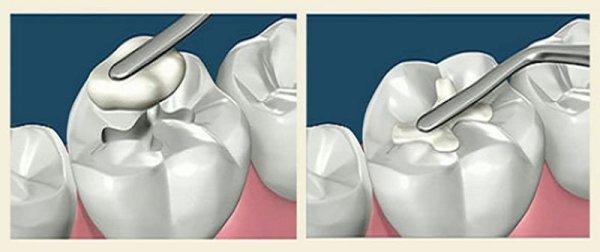 Свойства стеклоиономерного цемента для пломбирования зубов