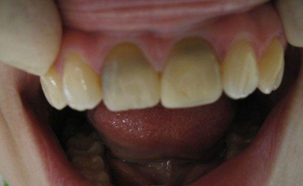 Внутриканальное отбеливание зубов отзывы