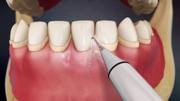 Цена чистки зубов ультразвуком