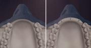 Аугментация альвеолярного гребня