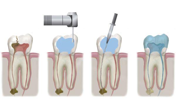 Реставрация молочных зубов после эндодонтического лечения