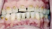 Эрозия эмали молочных зубов