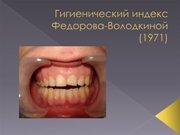 Гигиенический индекс полости рта