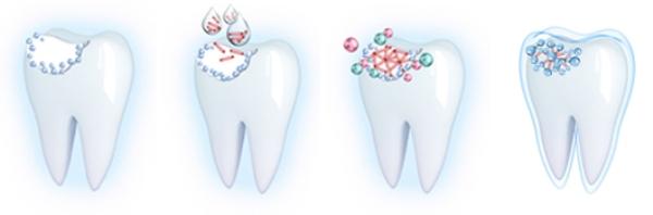 Имплантация эмали зубов цена