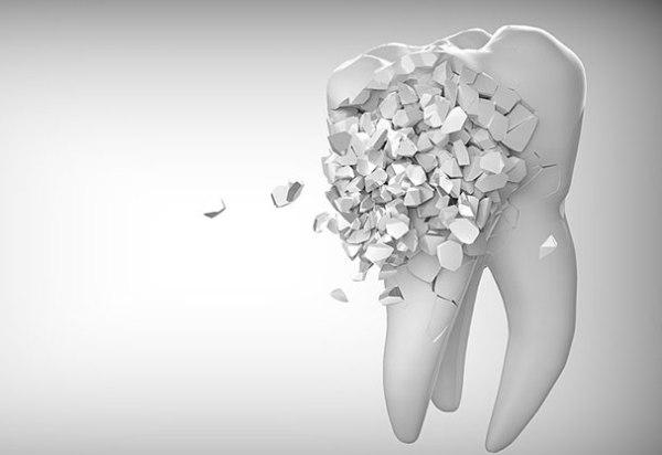 Метод имплантации эмали зубов и альтернативы