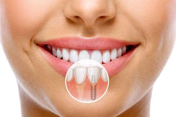 Методики имплантации передних зубов