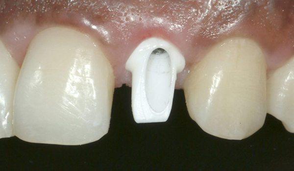 Имплантация передних зубов отзывы