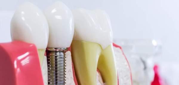 Имплантация зубов и предоставляемые гарантии