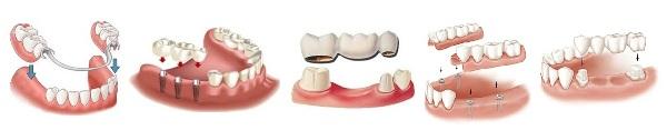 Из каких материалов делают зубные протезы