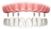Цена комплексной имплантации зубов