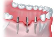 Стоимость комплексной имплантации зубов