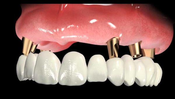 Возможные осложнения после комплексной имплантации зубов