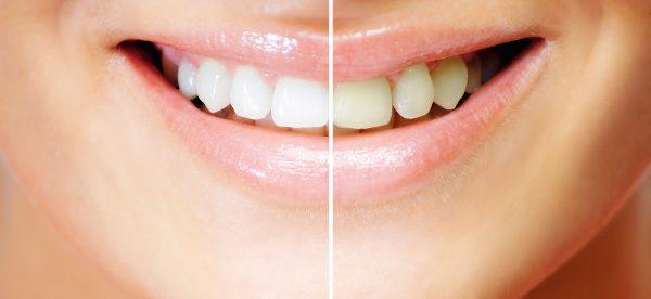 Лампа для отбеливания зубов beyond