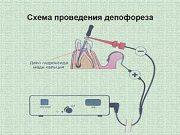 Лечение депофорезом