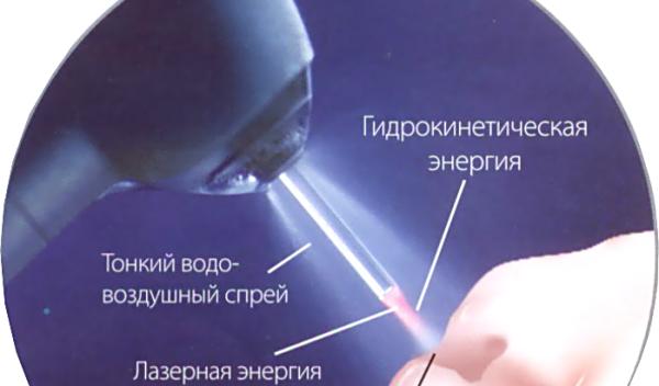 Лечение кариеса лазером отзывы
