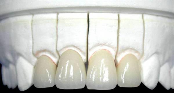 Лучший материал для зубных протезов