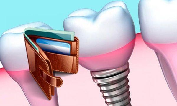 Важные аспекты при оформлении налогового вычета при имплантации зубов