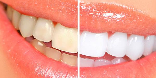 Отбеливание зубов холодным светом отзывы