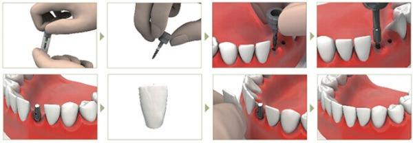 Шов после имплантации зуба фото