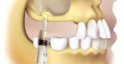 Показания к синус лифтингу в стоматологии